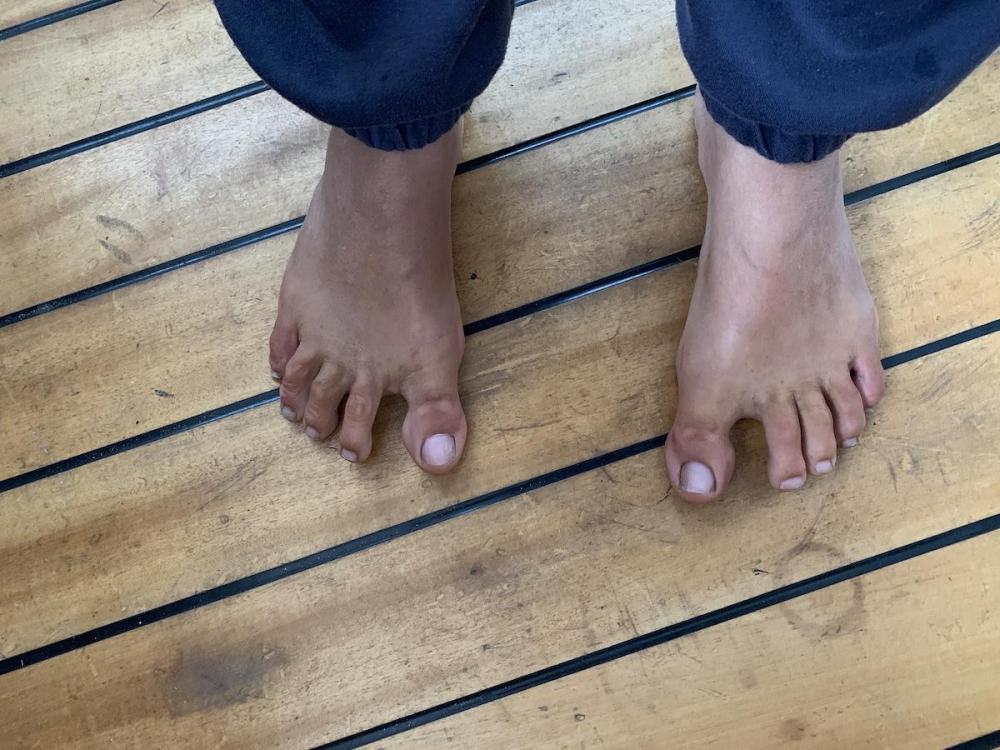 KL-feet.JPG